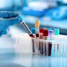 Testul de sânge, analize de laborator într-un suport, cu o mână cu mănușă care ridică o eprubetă, fundal albastru